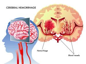 Stroke Risk Present Even With Borderline High Blood Pressure