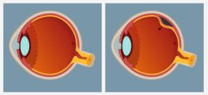 Retinal Problems