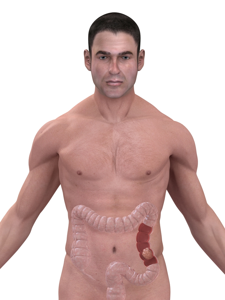 Lower abdominal pain radiates to left