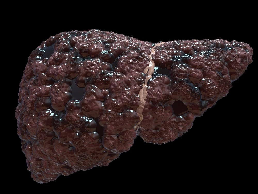 Liver Stones Symptoms And Treatment 9 Best Natural