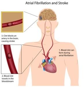 Fibrillation (Stroke Prevention)