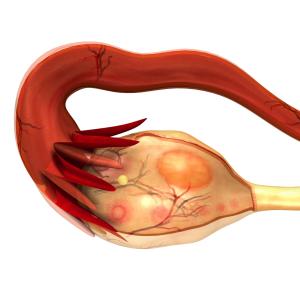 Ovarian Cancer Pain (Ovarian Cancer Not Yet Ruptured)