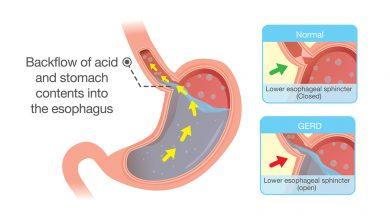 Kidney Failure Linked To Acid Medication