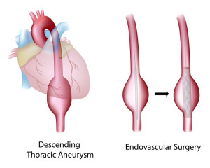 Thoracic Aortic Aneurysm