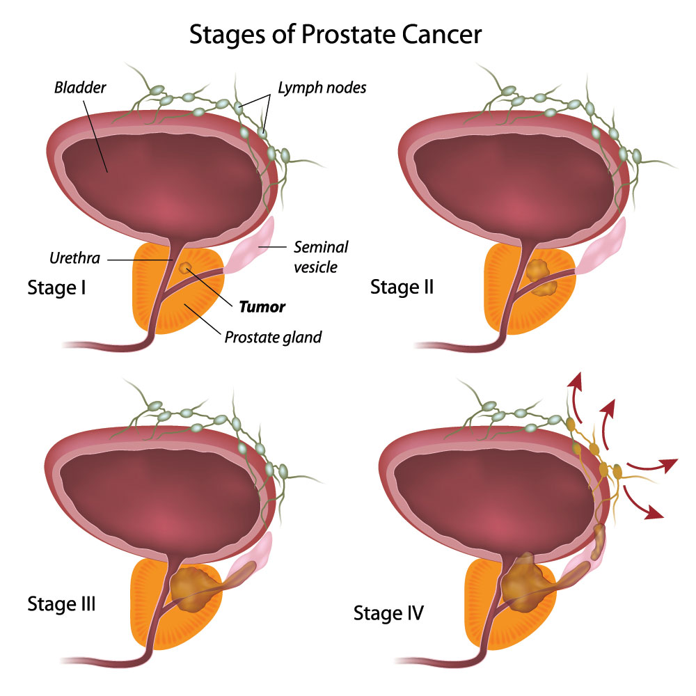 Staging Of Prostate Cancer - Net Health Book