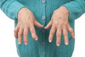 Rheumatoid arthritis can lead to hand deformities