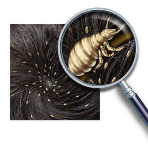 Head lice are a common nuisance
