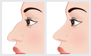 Surgical correction of nose deformity