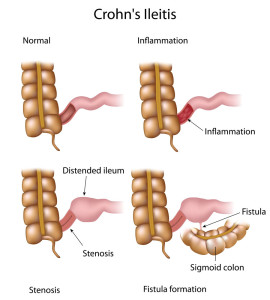 Crohn's disease can lead to stenosis and fistulas