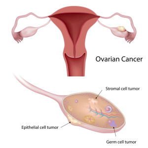 Ovarian cancer is difficult to detect