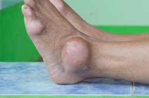 Gout leads to uric acid deposits