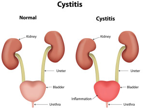 Cystitis (Bladder infection)