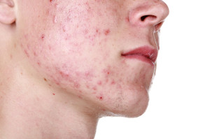 Acne in face