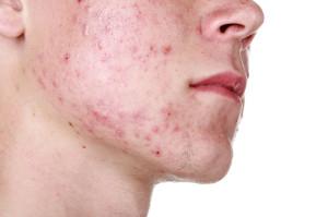 Acne in face
