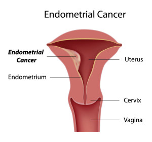 Cancer of the uterus (endometrial cancer)