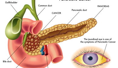 Pancreatic Cancer Linked To Diabetes