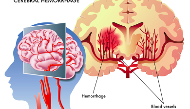 Stroke Risk Present Even With Borderline High Blood Pressure