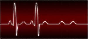 Complete Heart Block (Abnormal ECG)