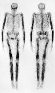 Bone Scan To Detect Bone Metastases