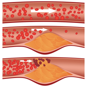 Arteriosclerosis (plaque formation, rupturing, clotting)
