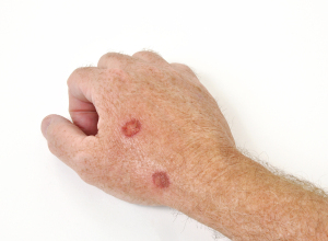 Premalignant Skin Cancer (Actinic Keratosis Treated With Liquid Nitrogen)