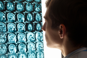 Brain Cancer Diagnostic Tests
