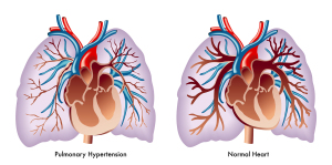 Pulmonary High Blood Pressure