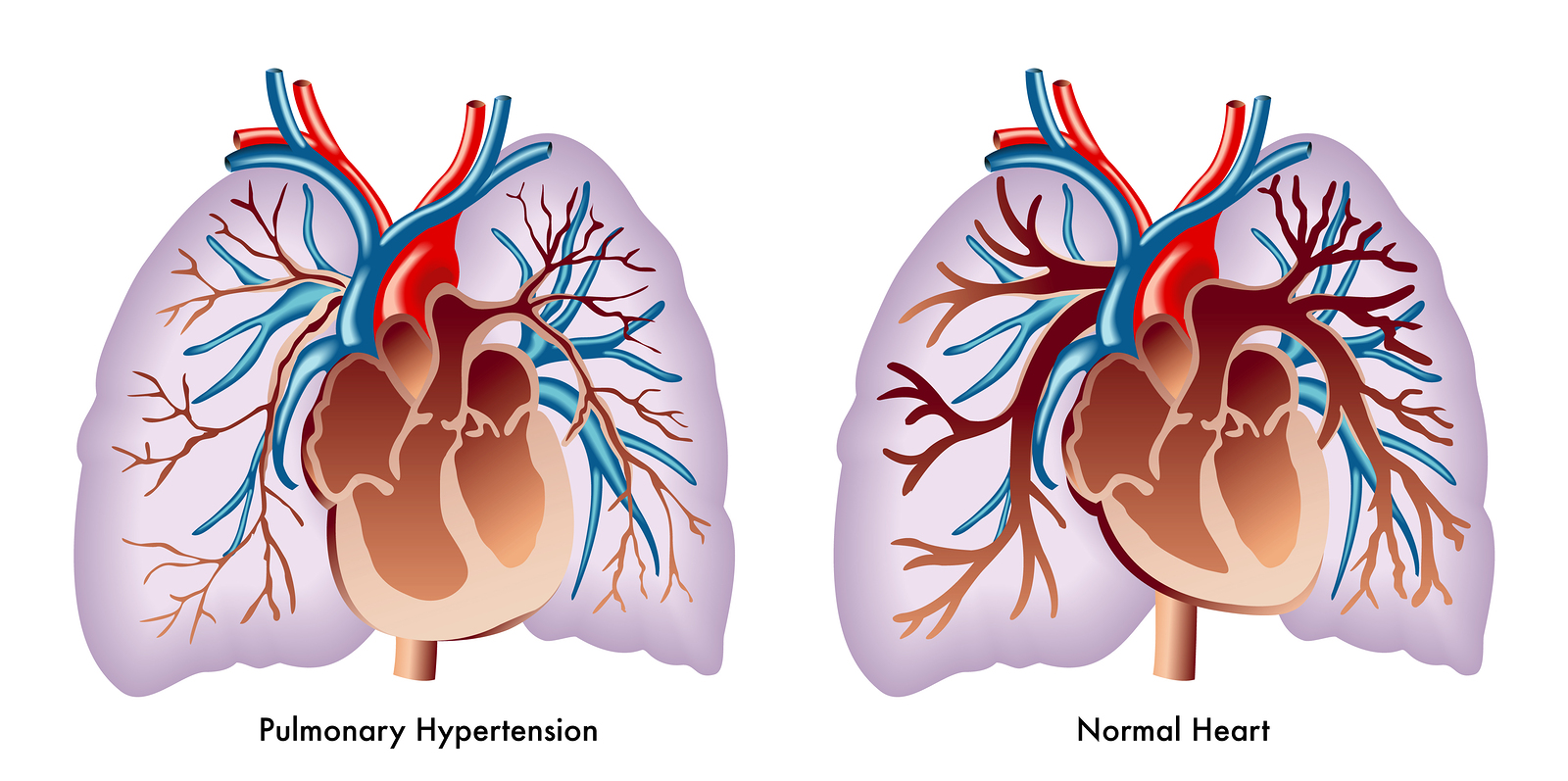 Pulmonary High Blood Pressure - Net Health Book