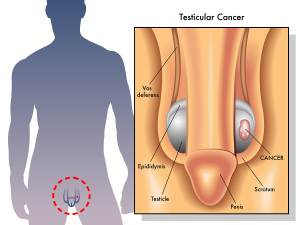 Testicular Cancer (Lump In Testicle)