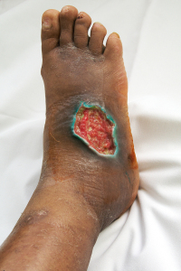 Effects Of Diabetes On The Feet (Diabetic Foot Ulcer)