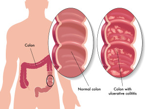 Diagnostic Tests For Ulcerative Colitis