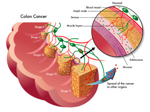 Staging Of Colon Cancer