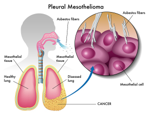 Occupational Lung Disease