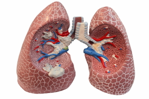 Staging Of Lung Cancer