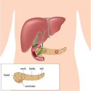 From Pancreatitis To Pancreatic Cancer