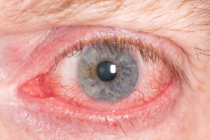 Uveitis (Painful Red Eye)