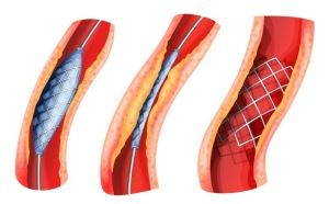 Cardiovascular Disease (Placement Of Stent For Severe Coronary Artery Blockage)