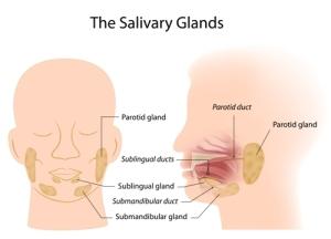 Salivary Gland Stones