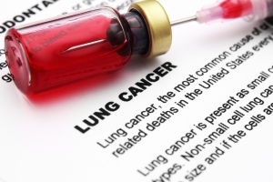 Treatment Of Lung Cancer (Chemotherapy)