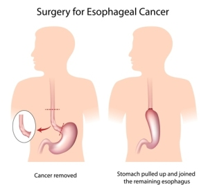 Treatment Of Esophageal Cancer