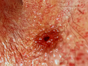 Gastritis (Examined by Gastroscopy, Note Peptic Ulcer Also) Gastritis (Examined by Gastroscopy, Note Peptic Ulcer Also)