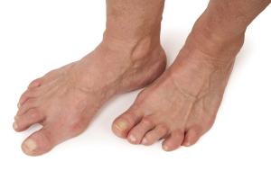 Rheumatoid Arthritis Of The Foot