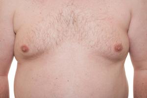 Cystic Fibrosis Treatment Side Effects (Gynecomastia)