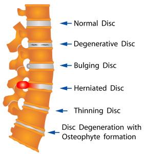 Degenerative Disc Treatment Suggestions