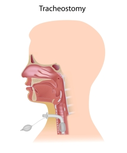 Treatment Of Throat Cancer (Tracheostomy)