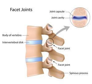 Lower Back Strain Treatment Suggestions