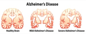 Alzheimer's Disease, What Is It…