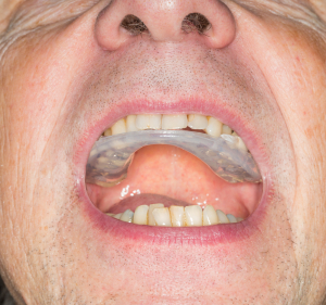 Bruxism (Mouthguard)