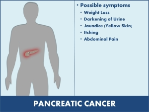 Symptoms of Cancer Of The Pancreas