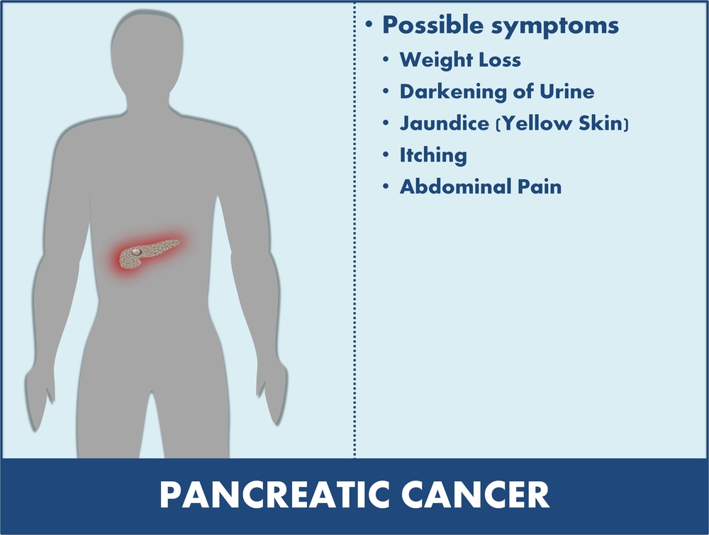 symptoms of cancer of the pancreas - net health book, Human Body